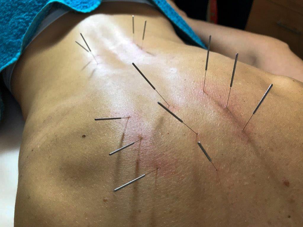 Akupunktura kezelés - Medical Healing Point