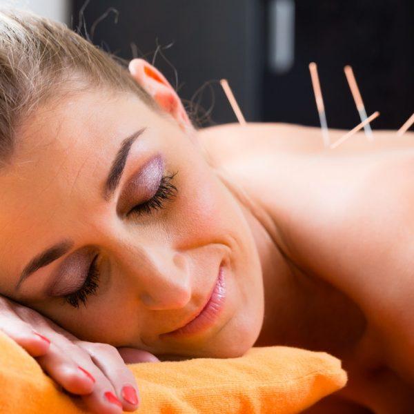Akupunktúra mozgásszervi és gerincproblémákra - Medical Healing Point - Papp János